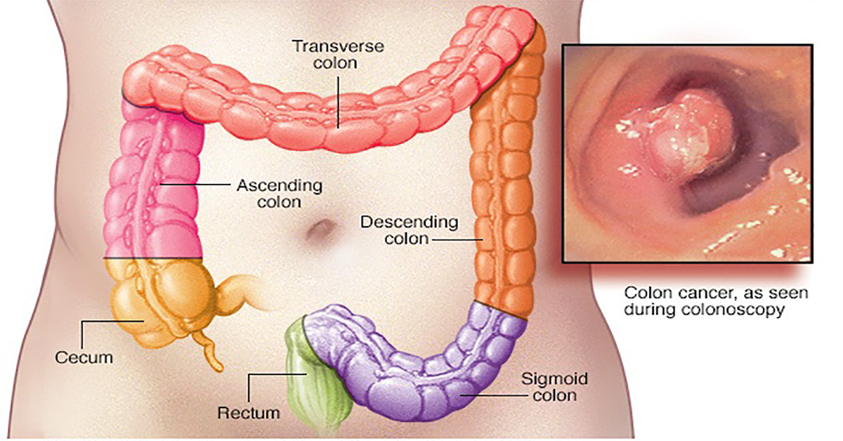 50% of All Colon Cancer Deaths Could Be Avoided If Everyone Did ...